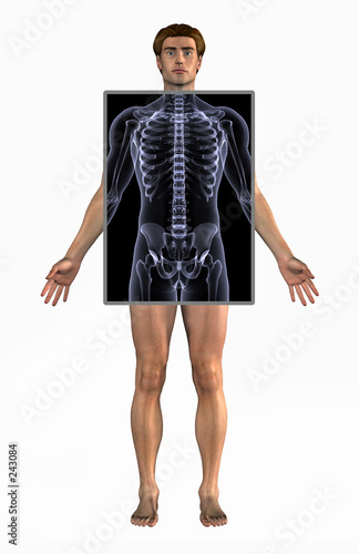 poster of man with x-ray