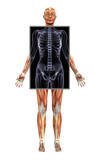 female muscle system with x-ray poster