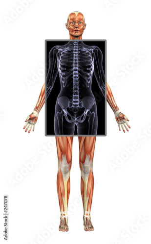 poster of female muscle system with x-ray