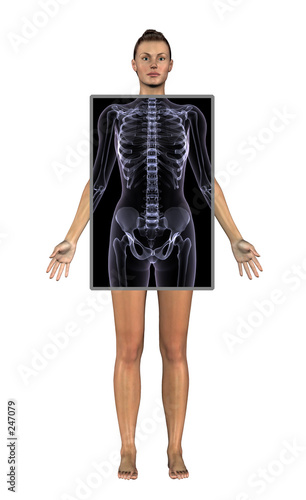 poster of woman with x-ray