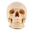 skull 1-medical model
