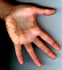 hand links