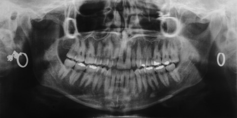 dentist x-ray