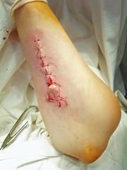patient's arm
