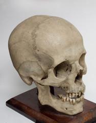 human braincase