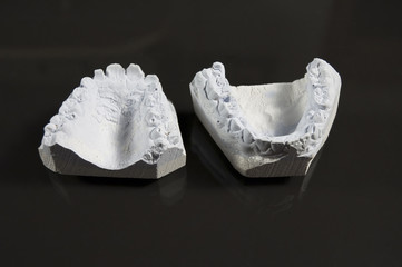 model of tooth