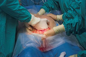 cesarean section birth