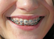 smile with brackets on teeth