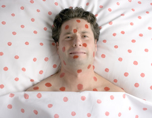 man with red spots on face and body
