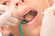 at the dentist - close up