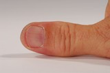 giant thumb poster