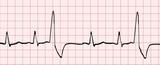 électrocardiogramme poster