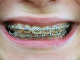 brackets on teeth poster