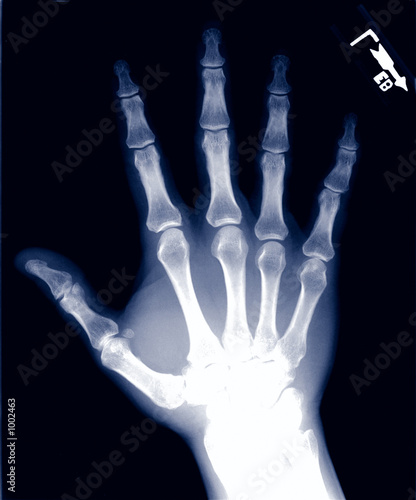 normal hand x-ray
