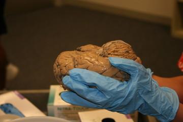 brain in plain view