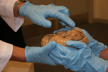 brain on display