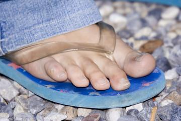 foot needing pedicure