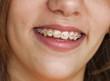 Stock Photo - Young beautiful girl smiles with bracket on teeth.