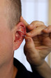 acupuncture needles in ear