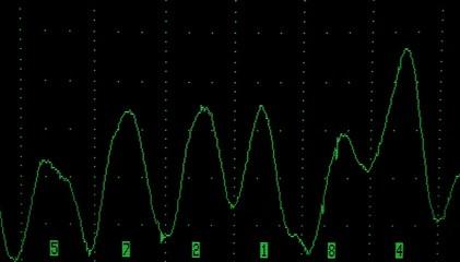 scope pattern 2