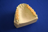 oral health teeth mold poster