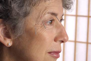 acupuncture needles on brow of senior woman