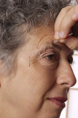 acupuncture on acupoints of woman's brow