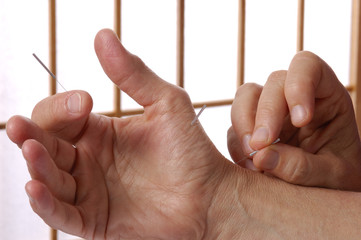 acupuncturist insert needles in hand