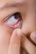 einsetzen der kontaktlinse