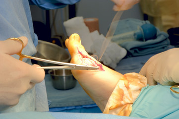 foot surgery - bunionectomy - suturing