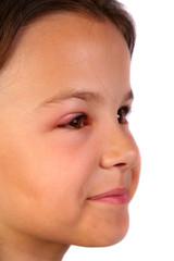hurt child 2