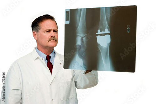 titanium knee replacement