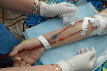 maintenance hemodialysis.