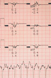 cardiological tests results poster