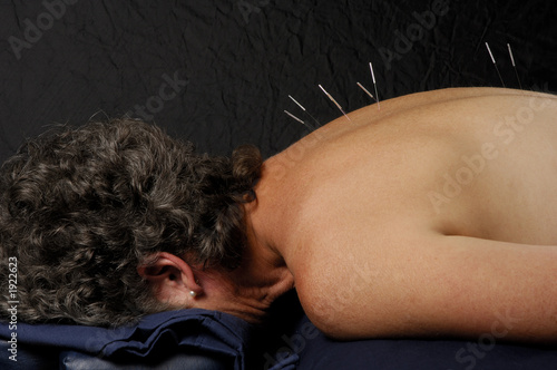acupuncture on back of woman