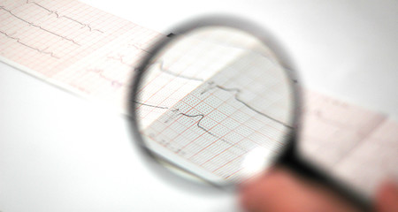 cardiogram  watched  threw the magnifying glass