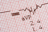 cardiographical test results poster