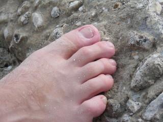 healed ingrown toenail