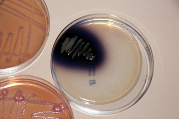 bakterienwachstum