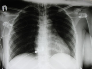 an xray of a chest