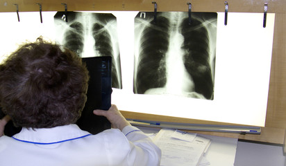 doctor examines xray film