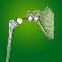 protesi spalla 2