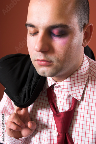 poster of attacked a businessman with black eye