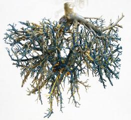 tree of veins 1