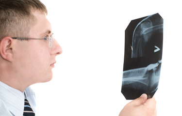 Doctor examining x-ray scans