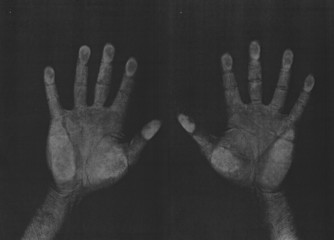 Photocopied hands, left and right