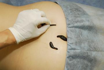 Three Blood sucking leechs on woman's back 3