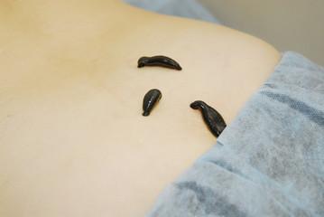 Three Blood sucking leechs on woman's back