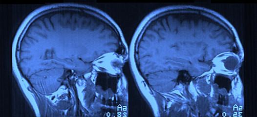 MRI Head