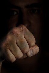 Injured fist of boxing fighter as a symbol of hazard